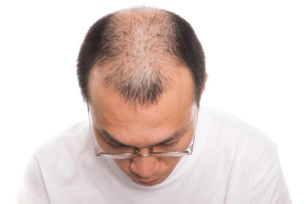 薄毛に効果がある育毛剤 Bomek【ボメック】