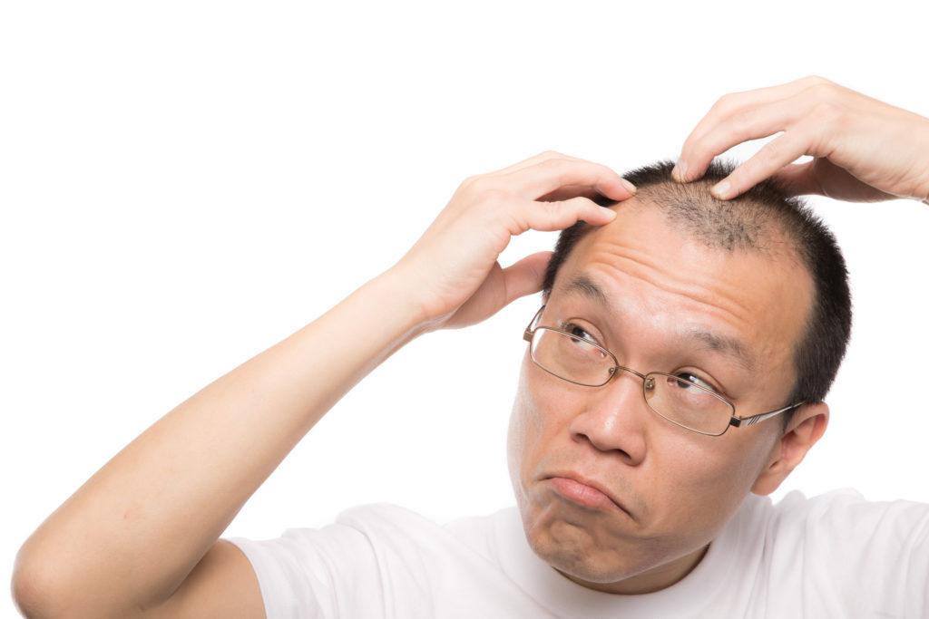 【ダビディアミノックス】副作用が少ないミノキシジル誘導体配合の育毛剤の効果とは